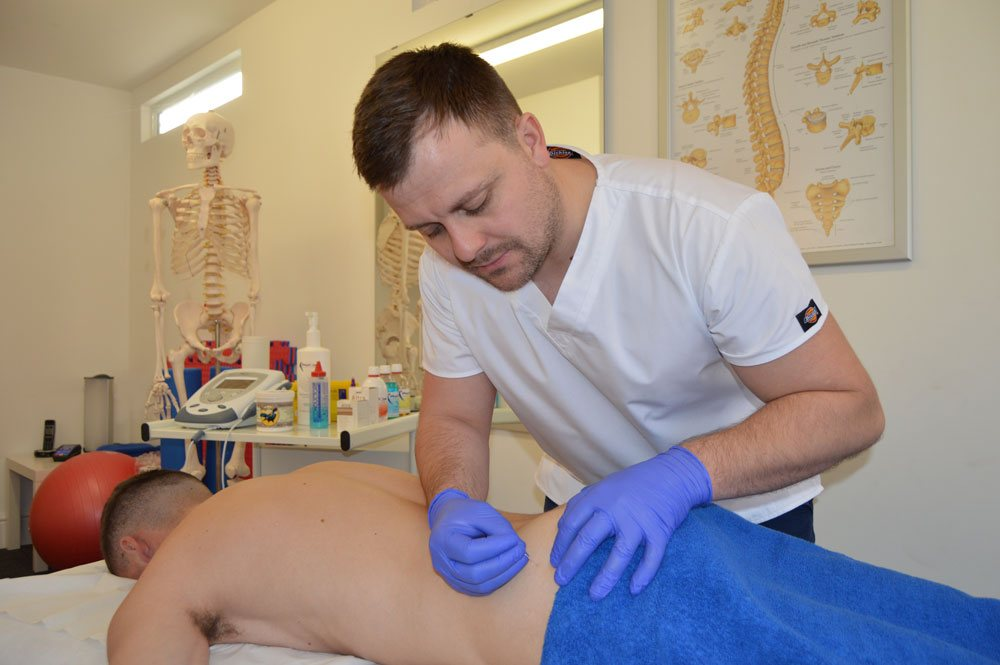 Medical Acupuncture In Birmingham By Mark Hutton